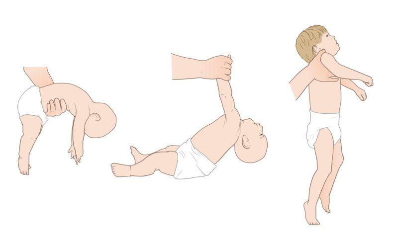 comprobacion hipotonia en bebes